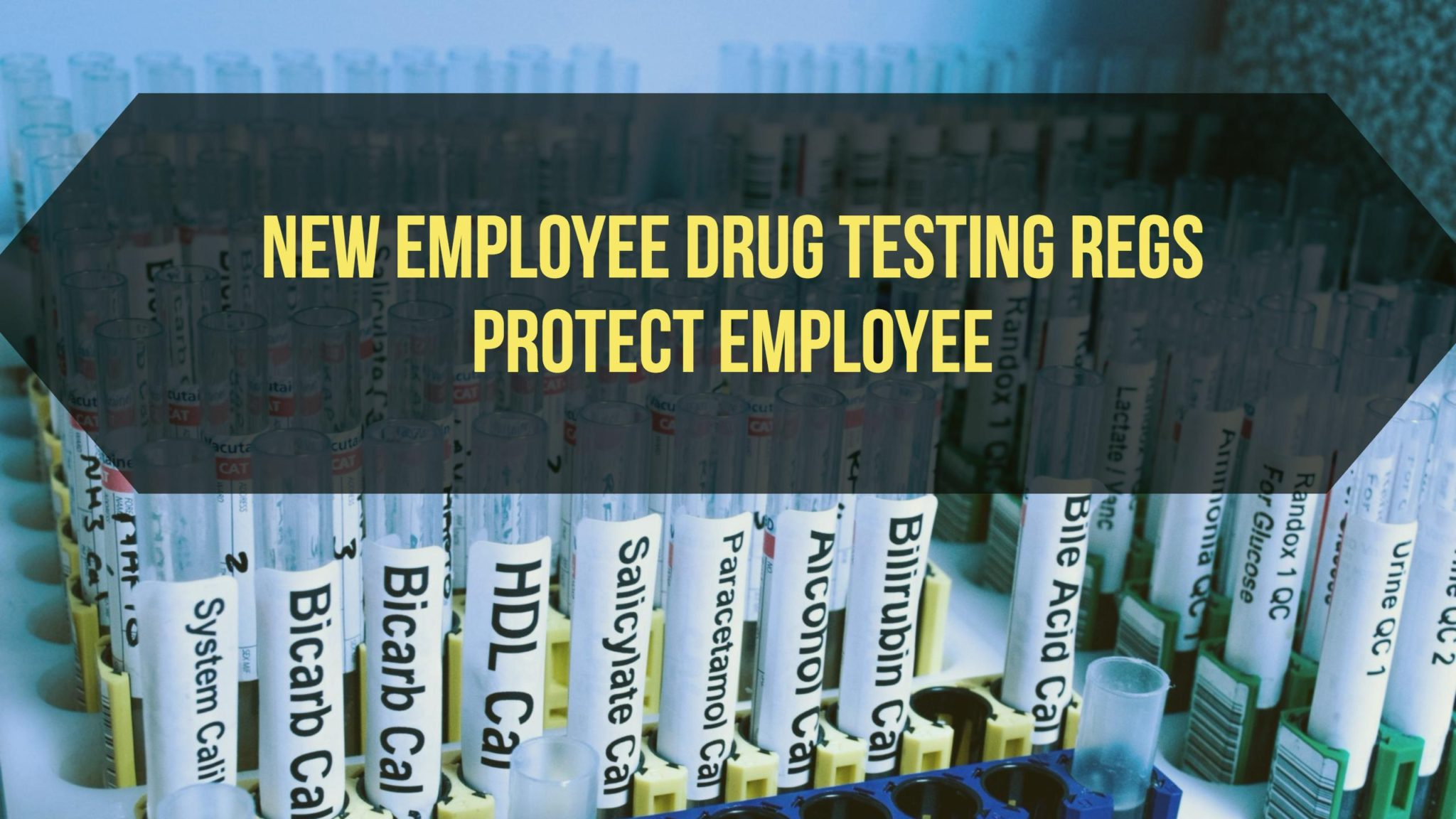 mandatory on the job drug testing The trump administration is considering a plan that would give states the option to require mandatory drug testing for  applying for a specialized job,.